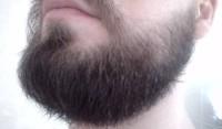 Что надо знать о миноксидиле для бороды