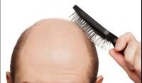 Лечебные шампуни от выпадения волос: как не ошибиться с выбором