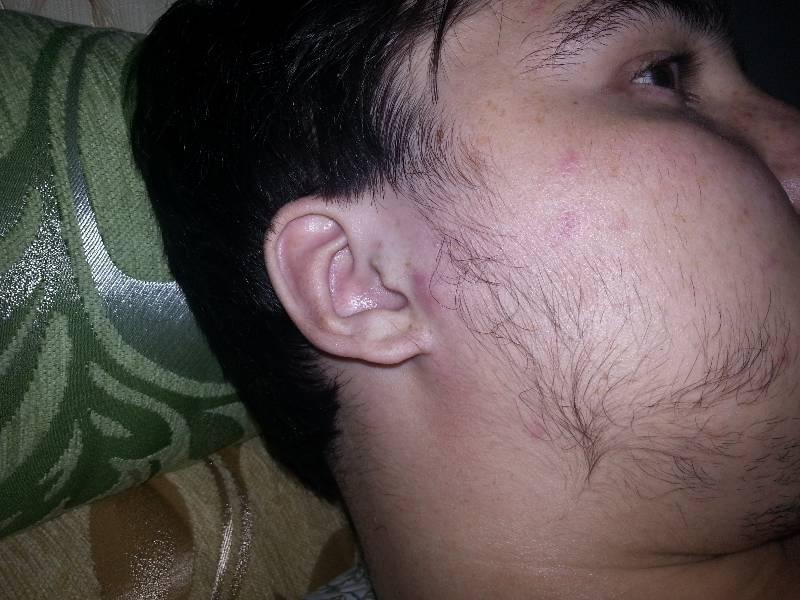 Результат применения миноксидила для бороды фото