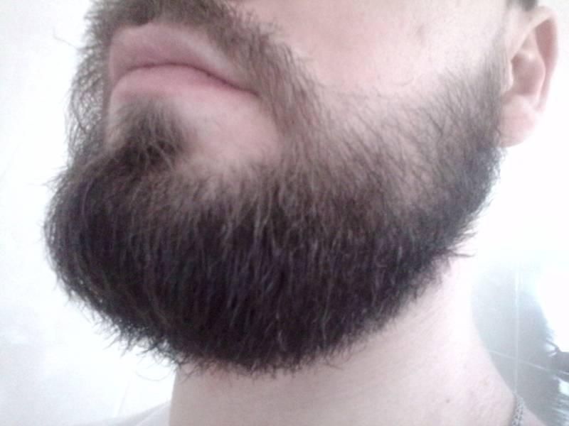 Результаты миноксидила для бороды фото