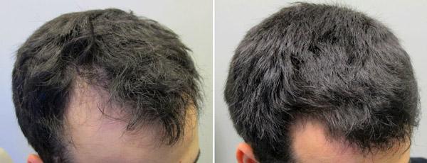 Minoxidil до и после фото