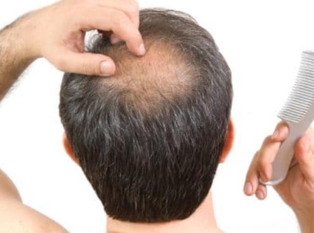 Эффективные препараты против облысения у мужчин фото