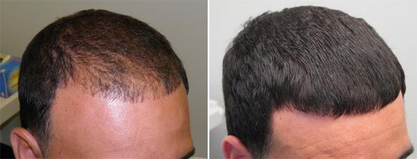 Миноксидил для волос: инструкция, отзывы, где купить | Doctorhair.ru