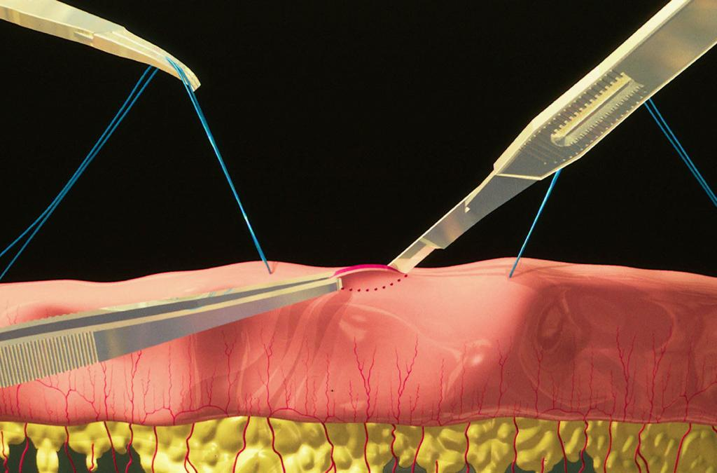 биопсия тканей