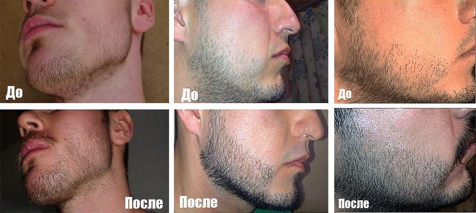 борода до применения касторового масла и после