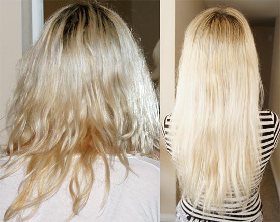 волосы после мезотерапии