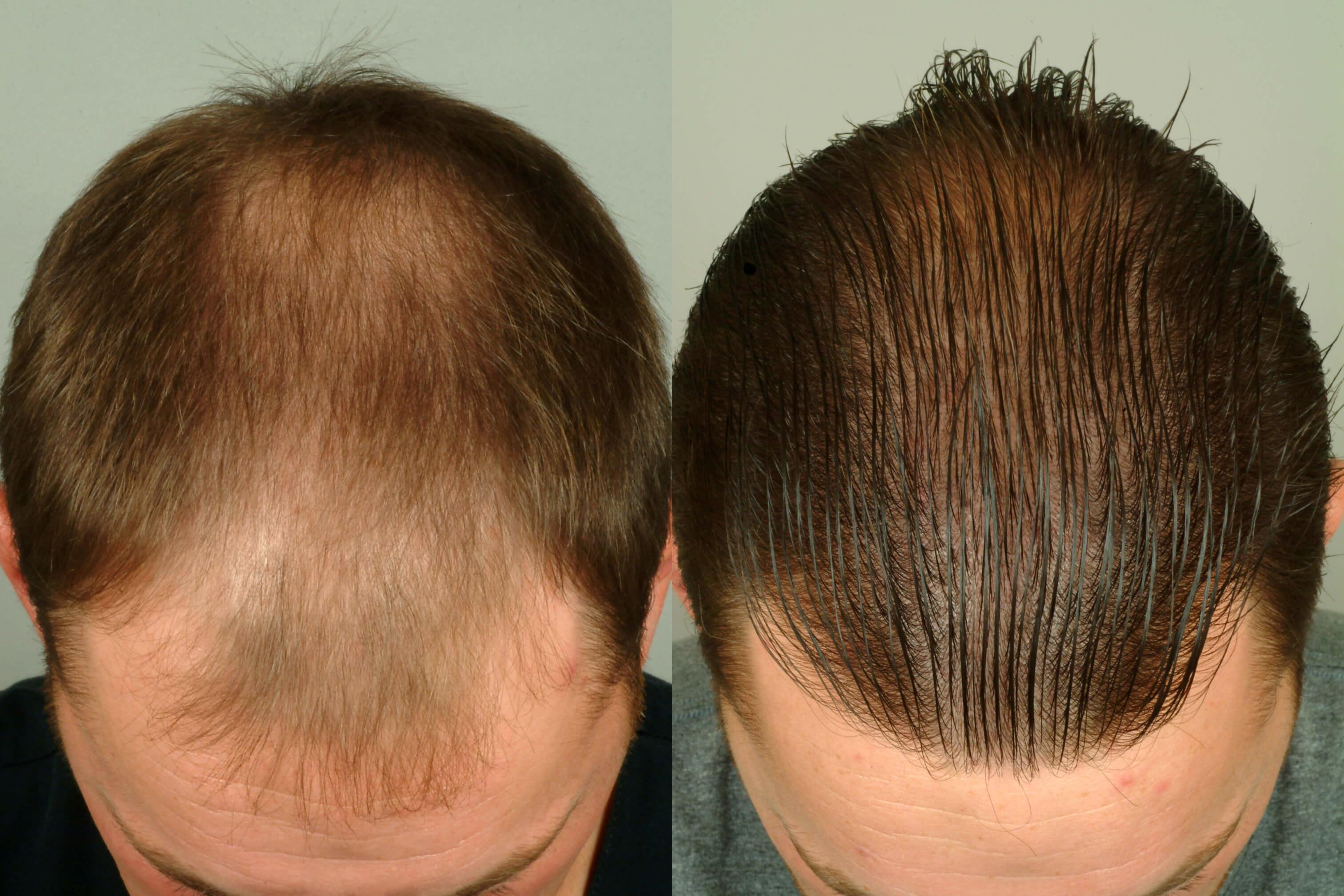 пересадка волос на голове до и после