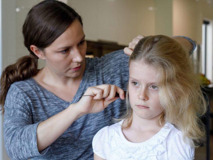 причины детской алопеции