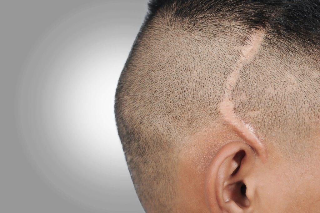 вид рубцовой алопеции на голове