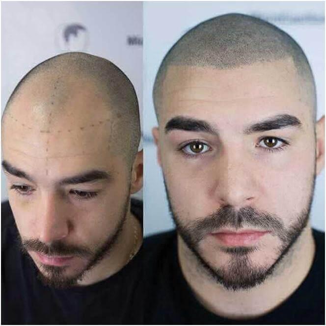 трихопигментация волос до и после фото 1