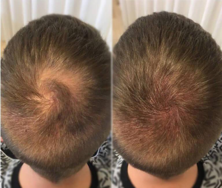 трихопигментация волос до и после фото 2