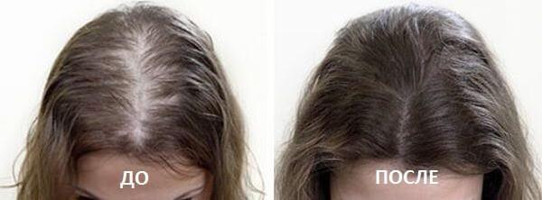 трихопигментация до и после фото 3