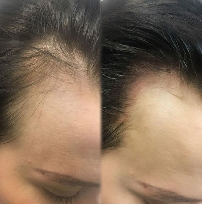 до и после фото 4