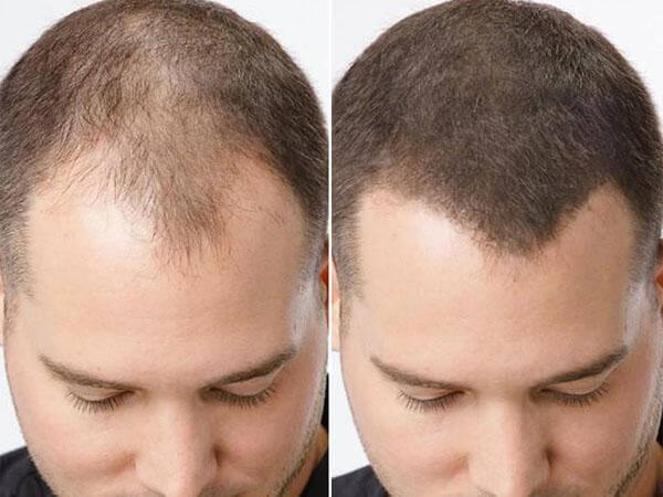 трихопигментация волос
