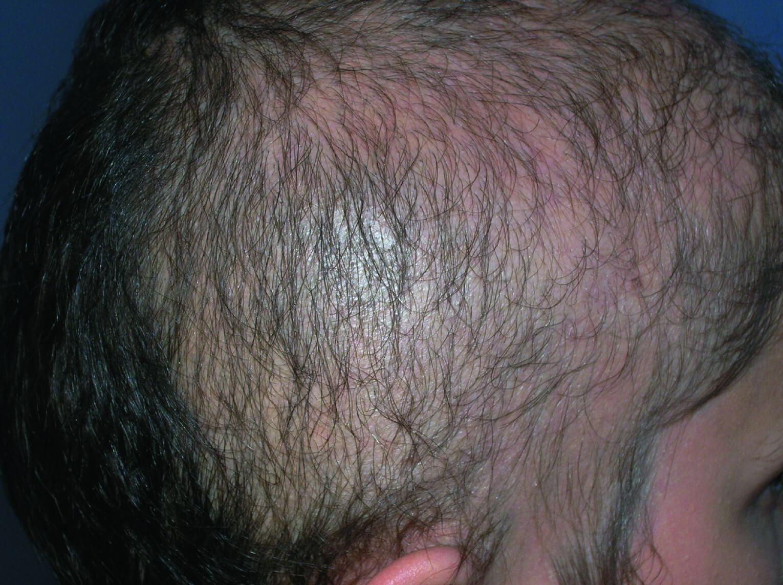 вырывание волос на голове